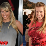 The New Celeb View on Plastic Surgery