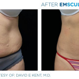 Build Muscle And Blast Away Fat With EMSCULPT!