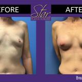 Breast Augmentation 3/2021