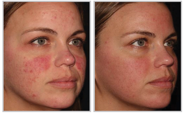 The Huge Benefits Of Halo Laser Treatment Star Plastic Surgery