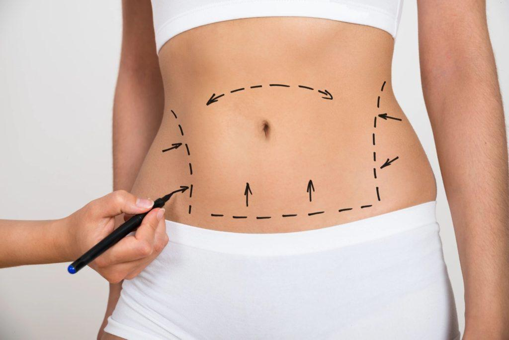 Benefits of the Drainless Tummy Tuck